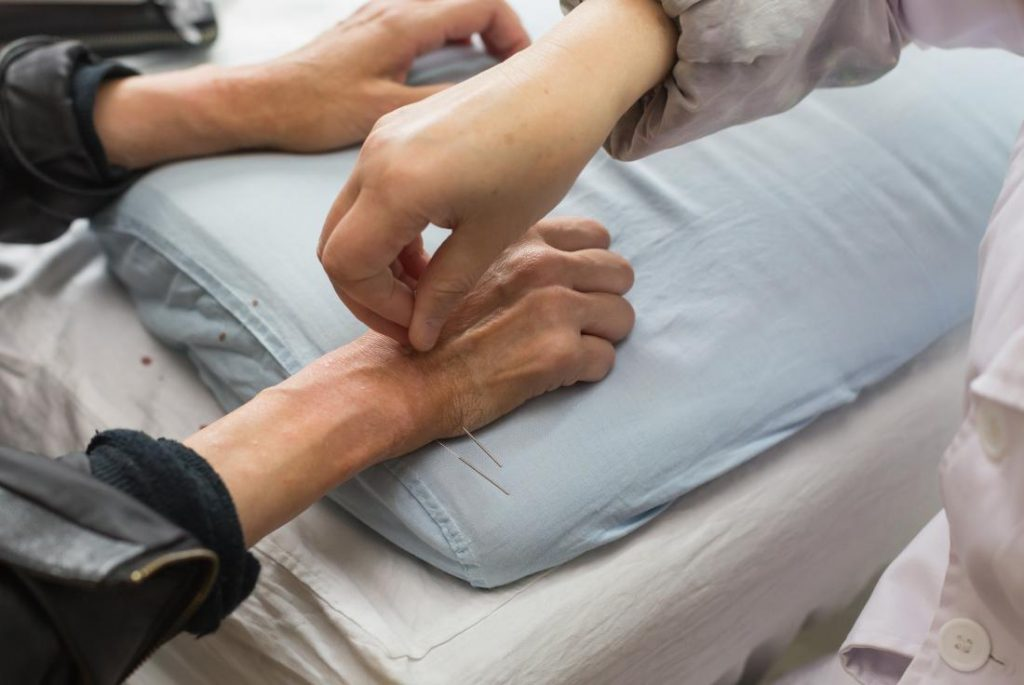 Acupuncture help Control diabetes